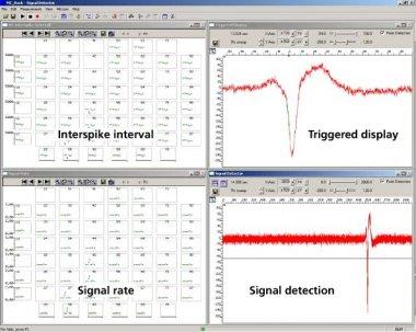 Event based analysis of cardiac activity