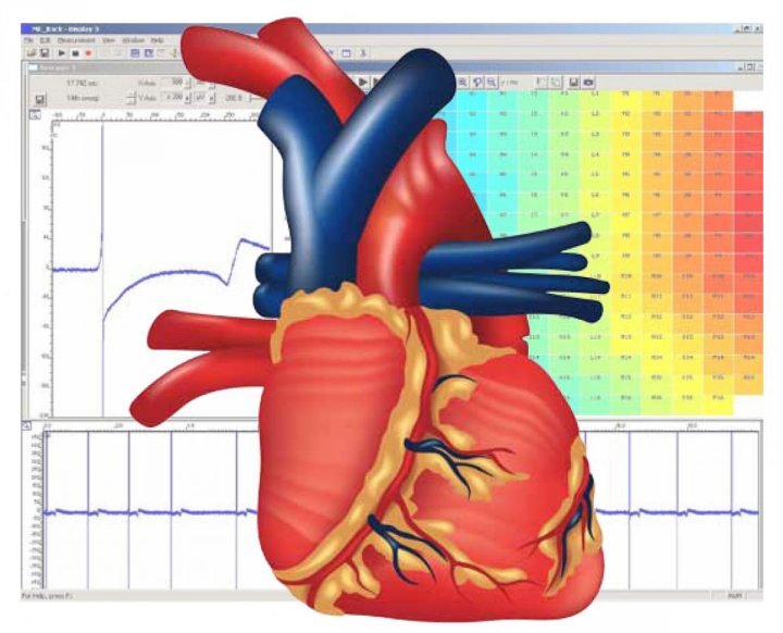 General Cardiac Applications